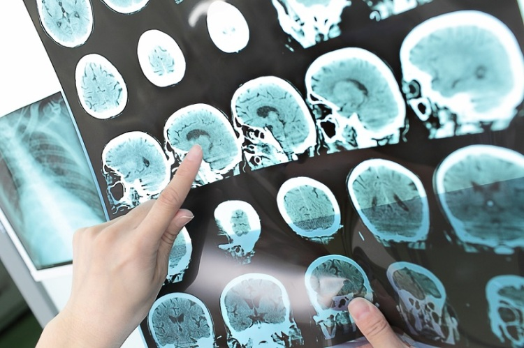 CT Scan brain Shutterstock Strong Fit Well