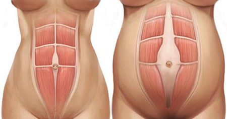 Diastasis recti image Strong Fit Well
