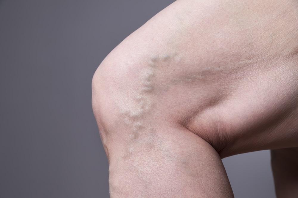 Varicose veins Shutterstock Strong Fit Well